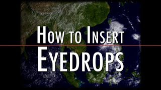 HOW TO USE EYE DROPS ?? PROPER METHOD| GUIDE | PATIENT INFORMATION AND LEARNING from EXPERT