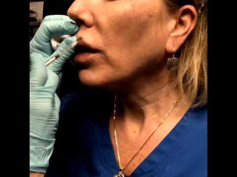 Botox for fine lines around lips