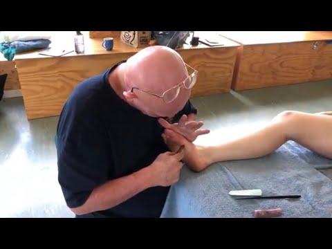 Foot reflexology. Foot massage withThai massage tools. Raynor massage on Teresa part 2