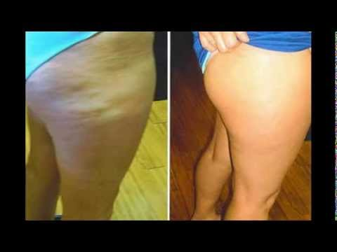 Lose Cellulite & Stretch Marks. Before and After Pictures