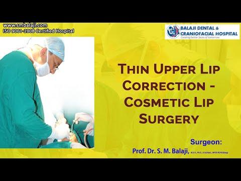 Thin Upper Lip Correction-Cosmetic Lip Surgery