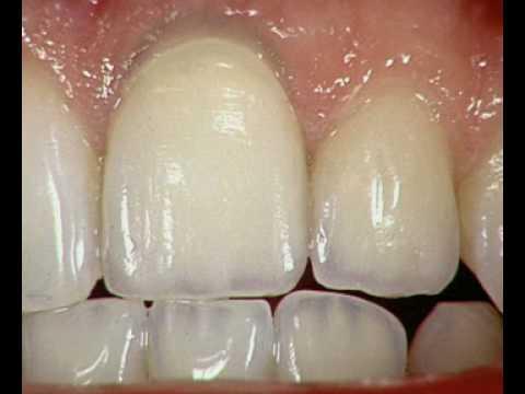 Искуственная коронка на зуб: стоимость, фото, виды