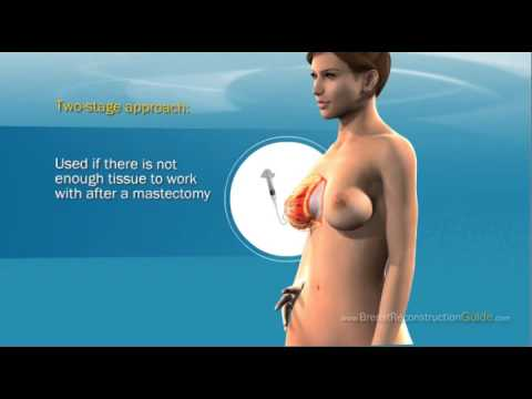 Breast Reconstruction following a Mastectomy