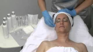 Senseonline - DermaQuest Skin Therapy Skin Peel Demonstration Video Thumbnail