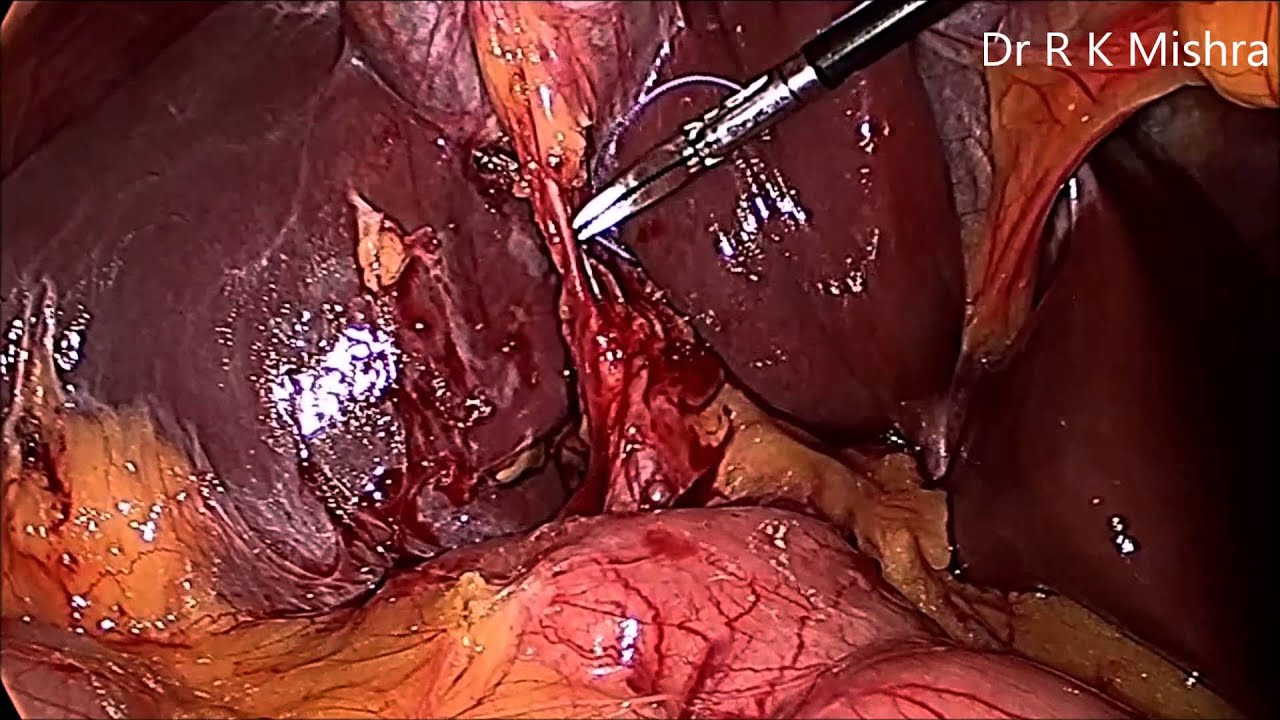 Gallbladder Stone Surgery - YouTube