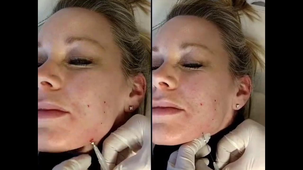 Thread Lifting Injection Tutorial Eurothreads Houston MD Aesthetica