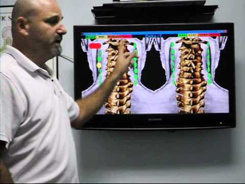 REESE CHIROPRACTIC CENTER |  HOLLYWOOD FL CHIROPRACTOR | 33021