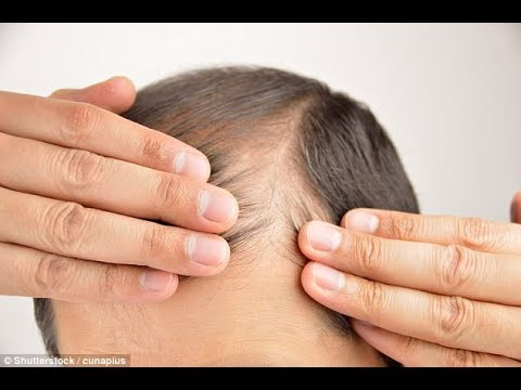 Scientists discover immune cells that trigger hair growth