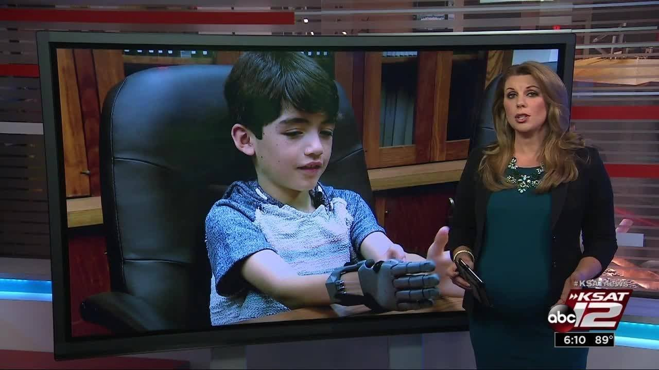 Boy receives functioning 3D printed prosthetic hand built at UT Health SA