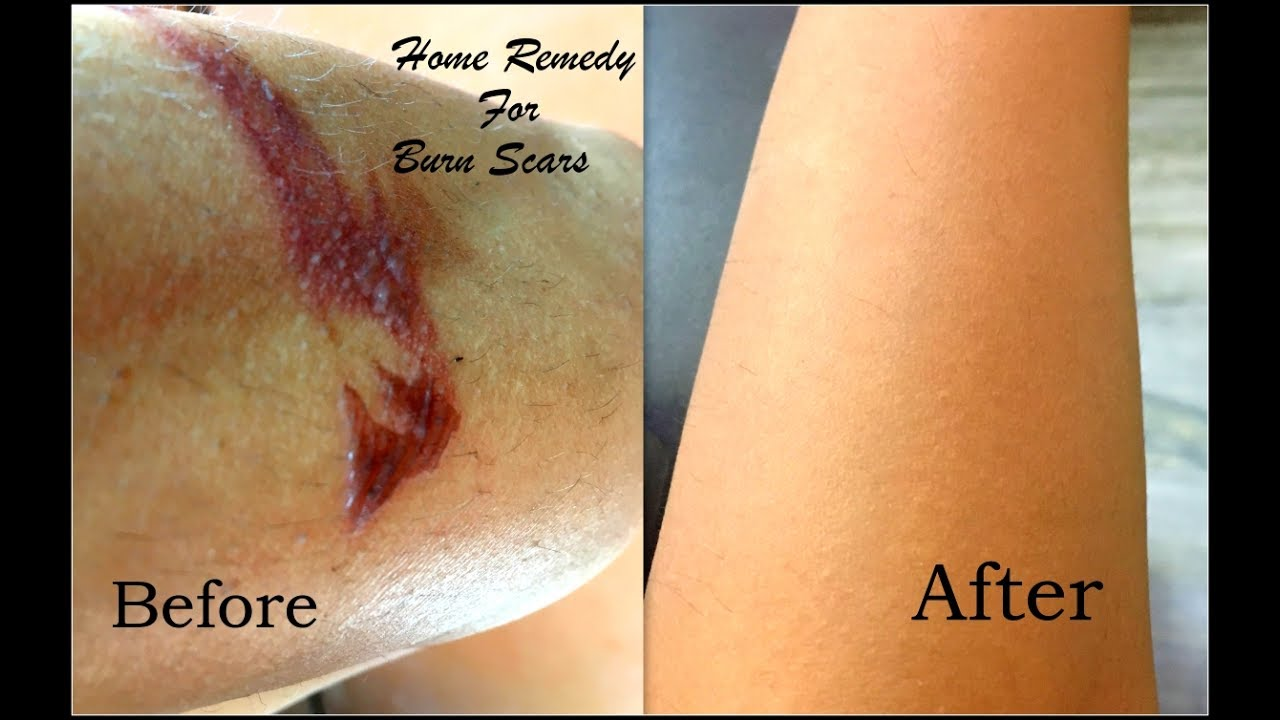 How To Remove Burn Marks Naturally