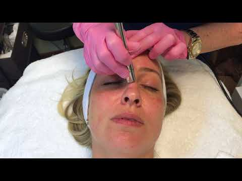 Microdermabrasion on young female patient - Saltz Spa Vitoria