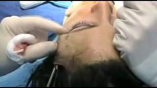 Temporal Brow Lift