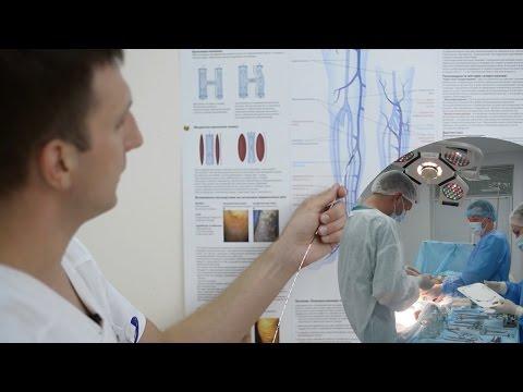 Виды операций по удалению варикозных вен (варикоза): как