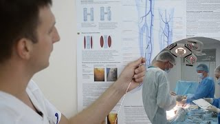 Хирургия одного дня: удаление варикоза вен(Лазерная коагуляция варикозного расширения вен позволяет лечить варикоз на любой стадии заболевания впло..., 2015-09-02T06:15:29.000Z)