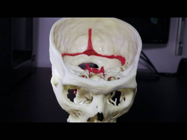 3D Printing at Mount Sinai