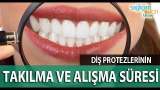 Diş Protezlerinin Takılma ve Alışma Süresi