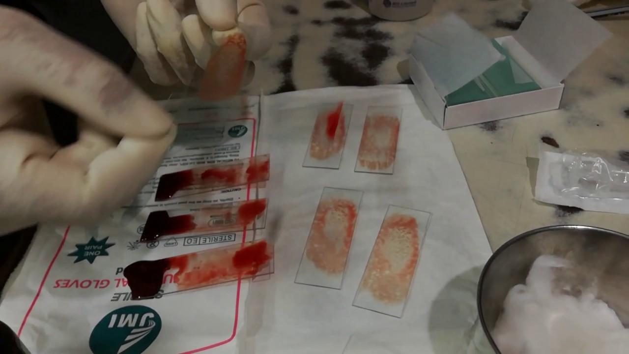 how to make bone marrow aspiration smear without the need