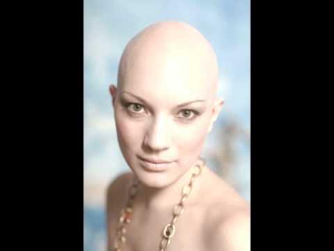 Bald Headed Woman Bee Gees Conspiracy YouTube