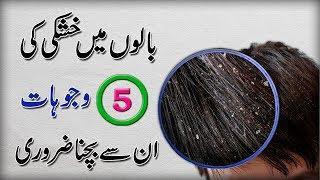 What Causes Dandruff || 5 Top Causes Of Dandruff || In Urdu