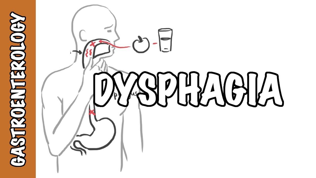 dysphagia fogyni