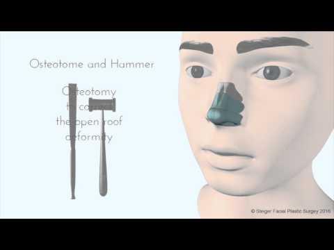Breaking the Nose - Rhinoplasty Animation - Osteotomy