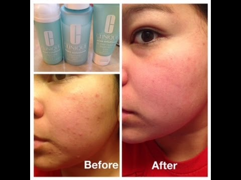 Clinique Acne Solutions Results Youtube