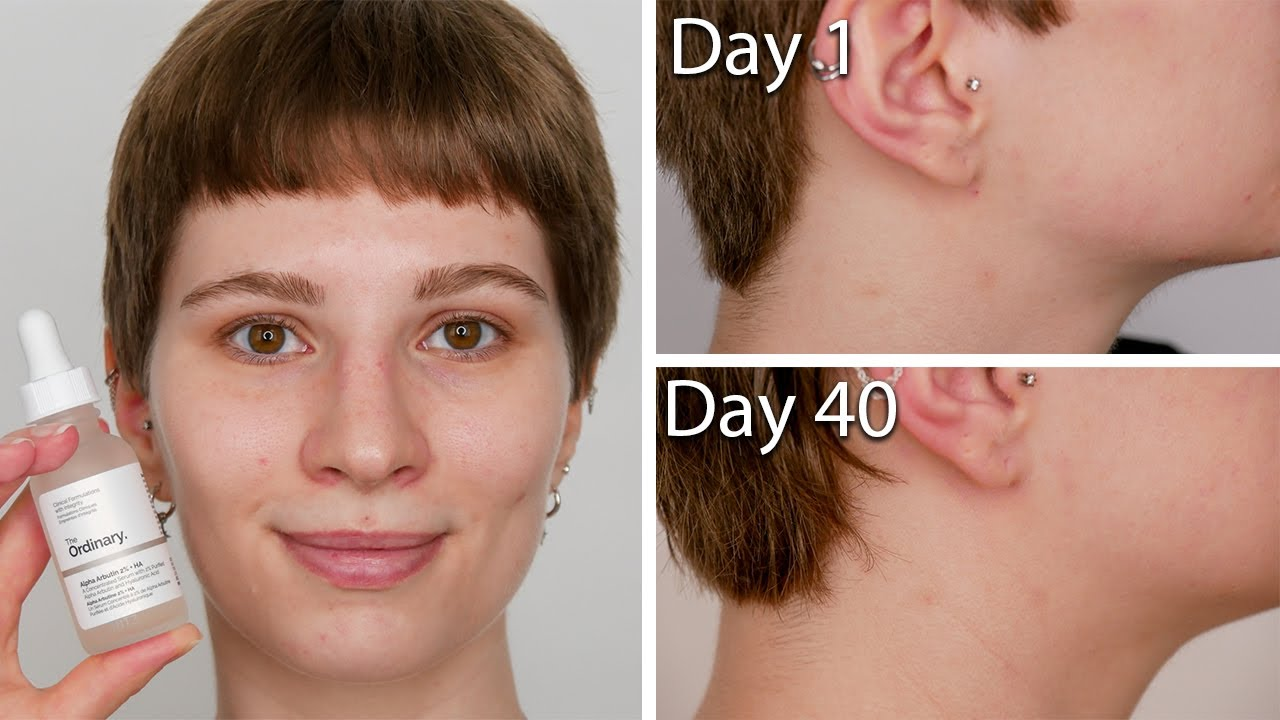 The Ordinary Alpha Arbutin 2 Ha Before After With Pictures Hyperpigmentation Dark Spots Youtube