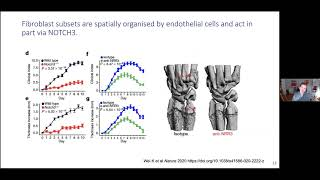 Iain McInnes || Rheumatology in Review: Where We are Today?