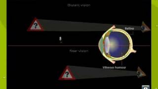Defects Of Vision1