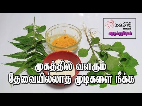 முகத்தில் வளரும் தேவையில்லாத முடிகளை நீக்க | Mugathil ulla mudi neenga | Unwanted hair removal
