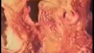 TMJ Degenerative Joint Disease (Grating sound, Closed Lock, Lock Jaw) Thumbnail