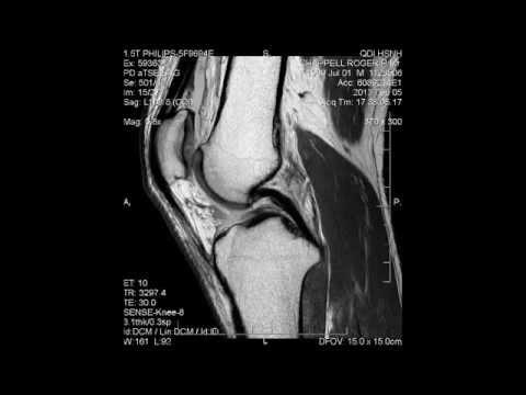 mri meniscus tear bucket handle tear it healed itself