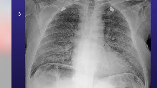 Coronavirus, come sono i polmoni quando vengono colpiti dal Covid-19