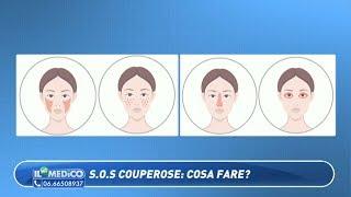 Il Mio Medico - S.O.S couperose: cosa fare?