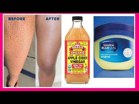 how-to-get-rid-of-strawberry-legs-fast-|4-easy-fast-remedy-for-strawberry-legs