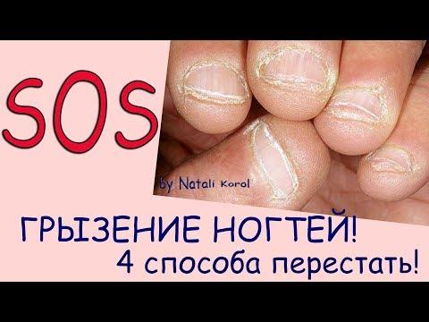 Как отучиться грызть ногти на руках в 14 лет