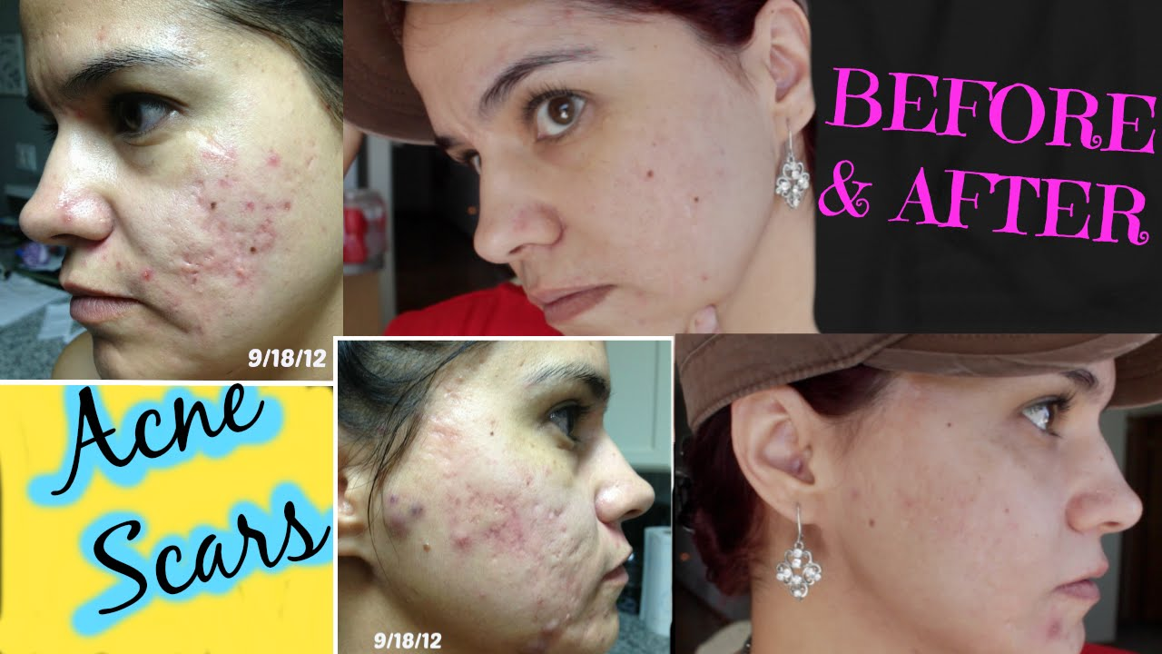 How to get rid of acne scars microdermabrasion youtube how to get rid of acne scars microdermabrasion ccuart Choice Image