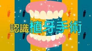 認識植牙手術