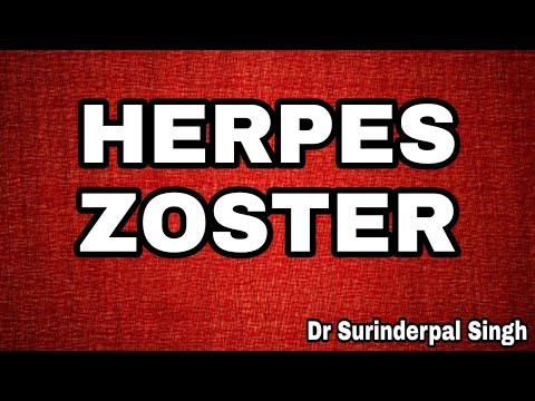 Herpes Zoster (genau) in Hindi by Dr S P Singh