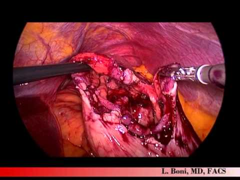 Laparoscopic Resection Of Intra Luminal Large ...