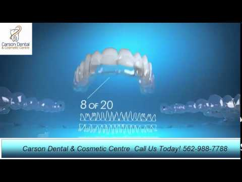 invisalign-aligners-lakewood-ca-carson-dental-and-cosmetic-centre