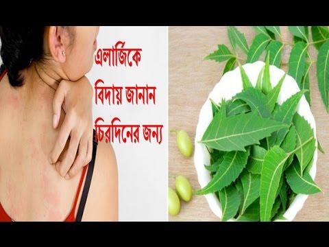 বিনা খরচে বিদায় করুন এলার্জি । How to remove allergy
