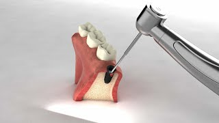 [이노즈] 3D 영상제작 /치아 임플란트