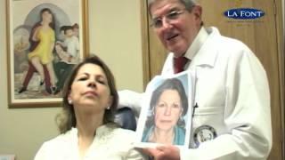 Estiramiento Facial o Face Lift, 1 mes Post-operatorio