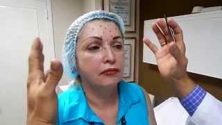 Aplicación de Botox - Dr. Jorge Azocar