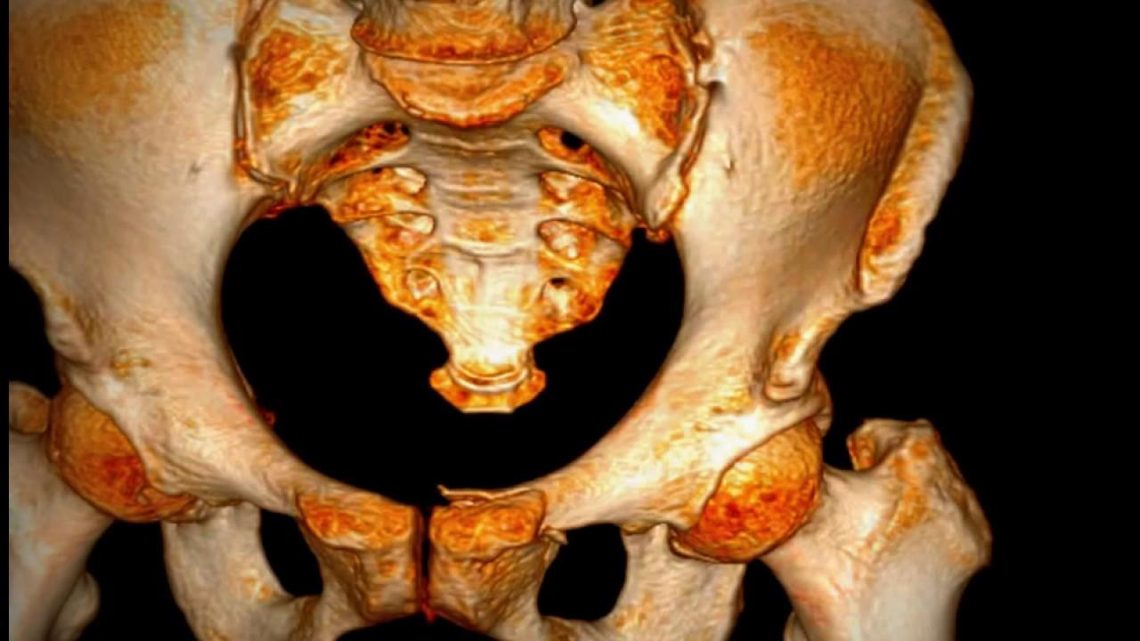 Pubic Bone Superior Ramus Fracture Youtube