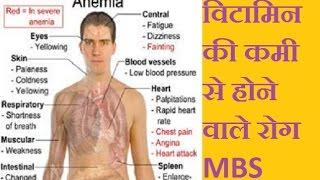 vitamin ki kami se hone vale rog - विटामिन की कमी से होने वाले रोग हिंदी में