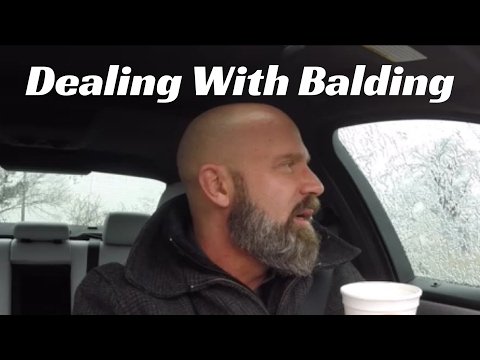 What Options Do Men Have When Losing Their Hair