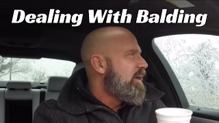 How To  Deal With & Accept Balding