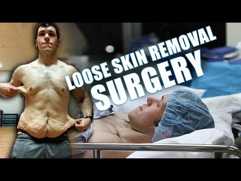 Male Skin Removal Surgery After Massive Weight Loss - ZachAttacksFat